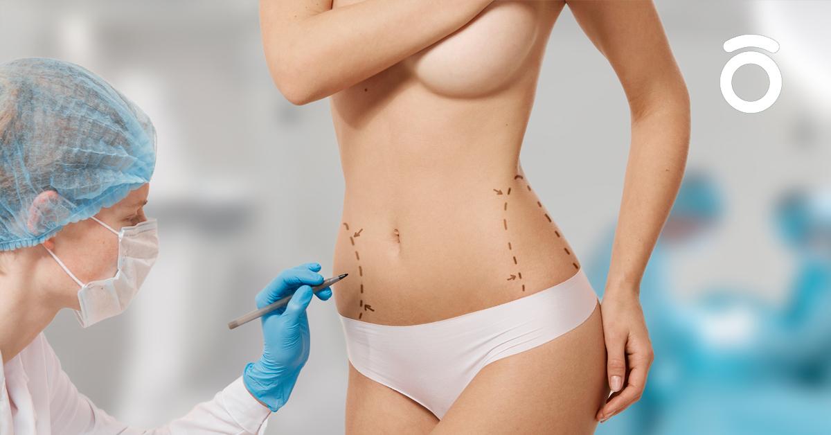 remodelación corporal